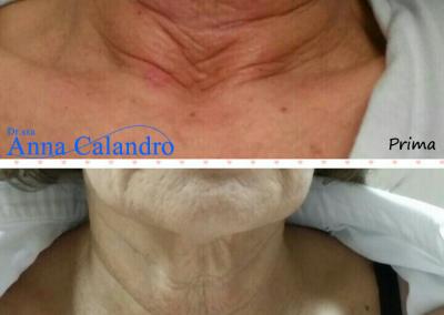 Carbossiterapia (8 sedute bisettimanali)